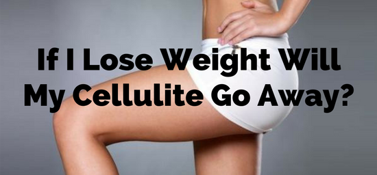 does cellulite go away if you lose weight photo - 1