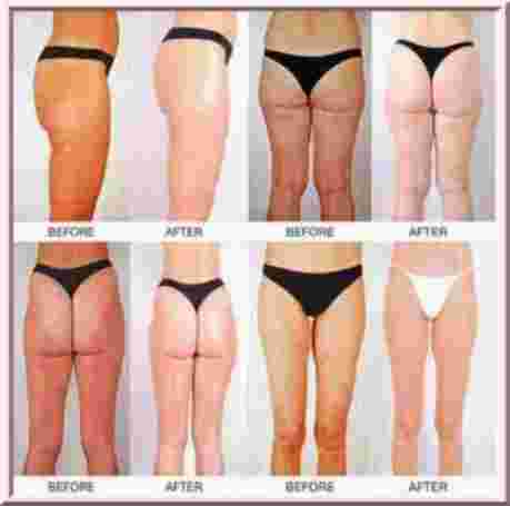 does cellulite go away when you lose weight photo - 1