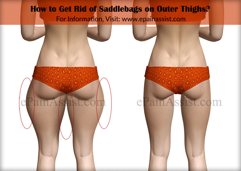 how do you lose weight in your legs photo - 1