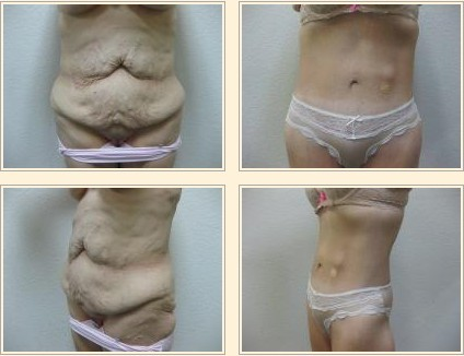 how to lose loose skin after weight loss photo - 1