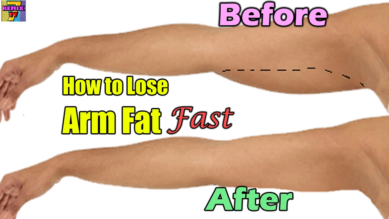 how to lose upper body weight fast photo - 1