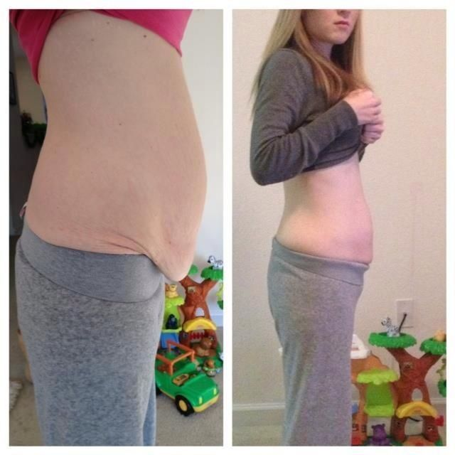 how to lose weight after gallbladder surgery photo - 1