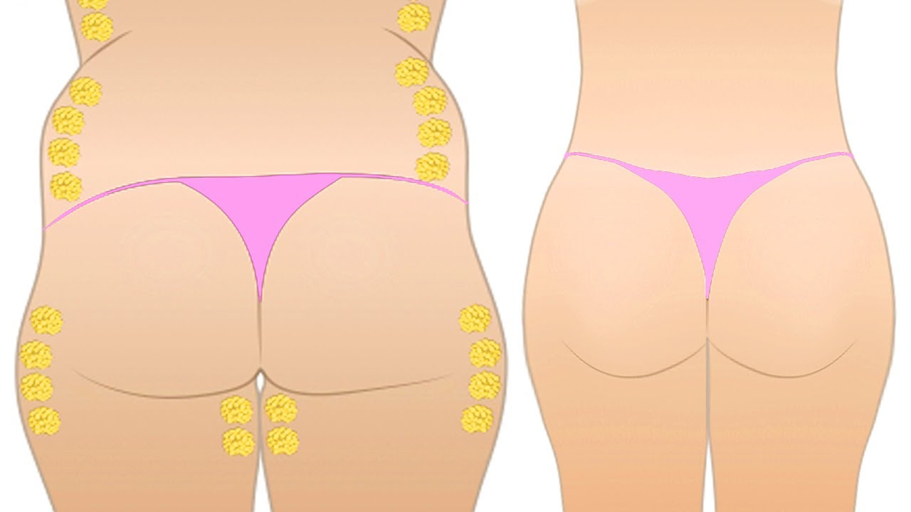 how to lose weight around the waist and stomach photo - 1