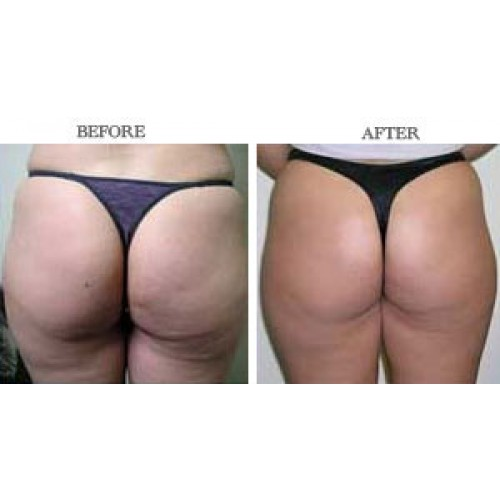 how to lose weight in thighs photo - 1