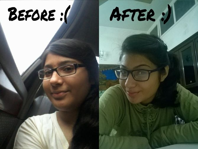 how to lose weight on face photo - 1