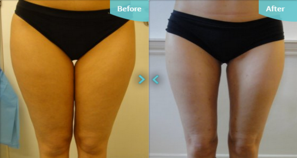how to lose weight on inner thighs photo - 1