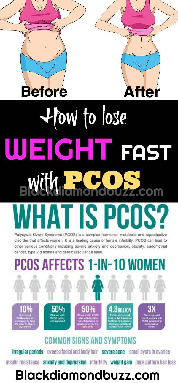 how to lose weight with pcos and insulin resistance photo - 1