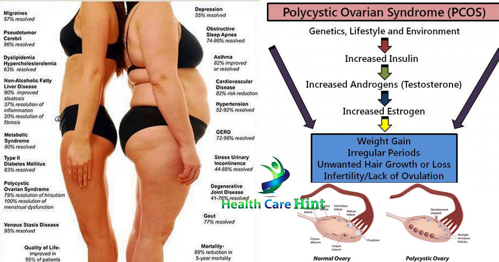 how to lose weight with pcos fast photo - 1