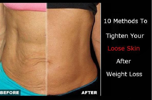 how to lose weight without saggy skin photo - 1