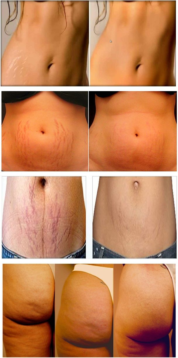 will stretch marks go away if i lose weight photo - 1